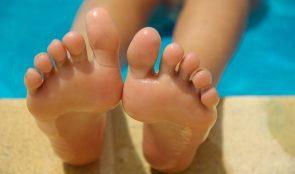 stopy po zabiegu parafiną